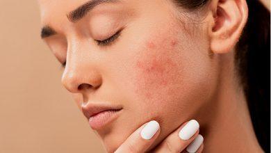 akne i kako se rešiti akni